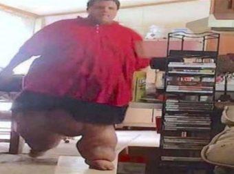 28χρονος ζύγιζε 320 κιλά – Μόλις δείτε πως είναι σήμερα δεν θα πιστεύετε στα μάτια σας (Video)