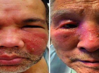 Φρικιαστική παρενέργεια ασθενών στο πρόσωπο μετά τον εμβολιασμό τους – Εξανθήματα, πρήξιμο και κοκκινίλες