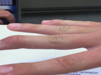 """Καρκίνος: Τι δείχνουν τα δάχτυλα; 8+1 περίεργες """"συνδέσεις"""" του σώματος"""